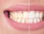 تخلصي من اصفرار الأسنان في 60 ثانية فقط