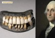هل علاج مرض اوباما سيكون بأسنان