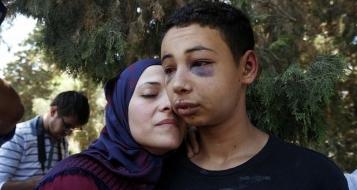 واشنطن قلقة وتتهم إسرائيل باستهداف عائلة أبو خضير