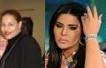7 مشاهير قبل وبعد عمليات التجميل: جميلات من قاع الدست