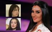 صور ميساء مغربي قبل عمليات التجميل وبعدها تغزو مواقع التواصل