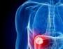 اضطرابات الكبد و زيادة الوزن