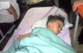 إستخراج جنين من بطن طفل يمني في شهره السابع