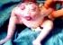 ولادة طفل ضفدع: حالة نادرة في لبنان