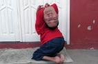 برازيلي بـرأس مقلوب يرفض الإعاقة