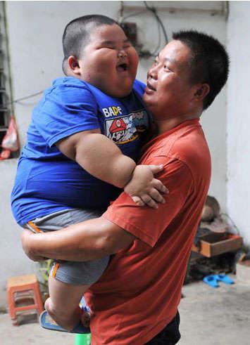 طفل عمره 3 سنوات ووزنه 60 ك
